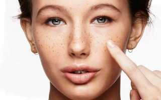 Как применять масло от пигментных пятен на лице, действенные рецепты