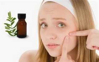 Эфирное масло чайного дерева от прыщей на лице — применение в чистом виде, маски, спреи, лосьоны