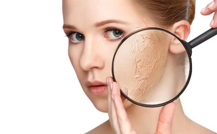 Масло при сухости кожи лица