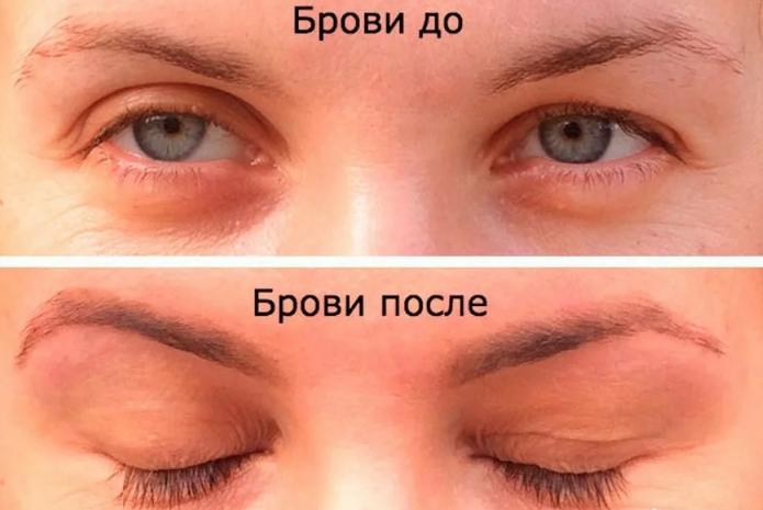 Касторовое масло для бровей: до и после