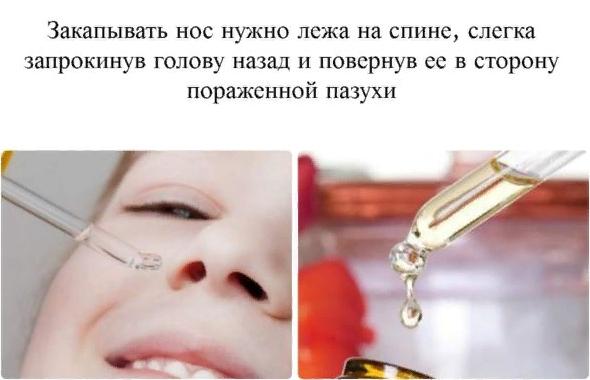 Как правильно закапывать масло в нос